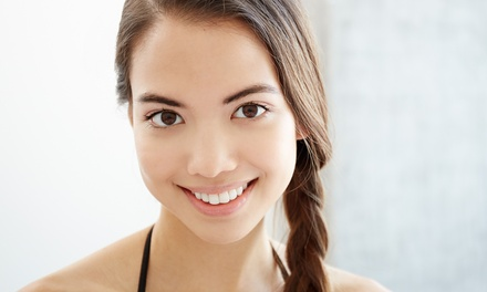 $79 for a Dental Exam with Clean and X Rays at Smile Dental, 12 Locations